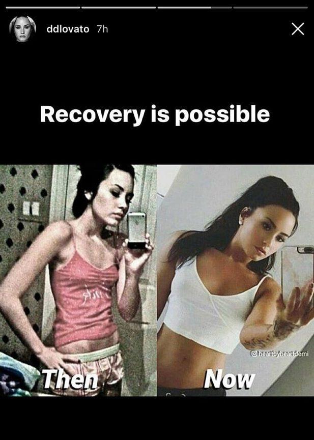 demi-bulimia